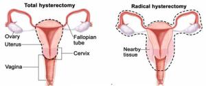 Histerektomi-kanker serviks